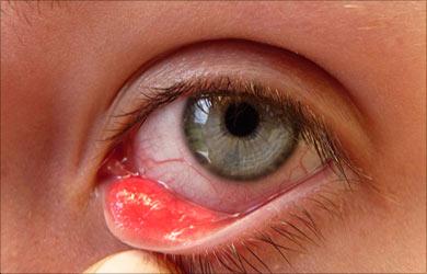 Allergic Disorders: Eyelid Sty