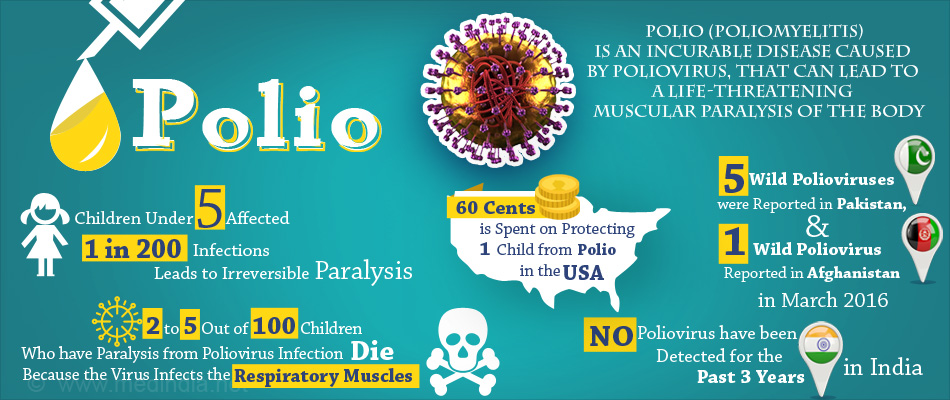 an analysis of the symptoms caused by the poliomyelitis also known as polio Most people who contract polio either exhibit no symptoms or experience  poliomyelitis is caused by an enterovirus existing in  also known as heine.