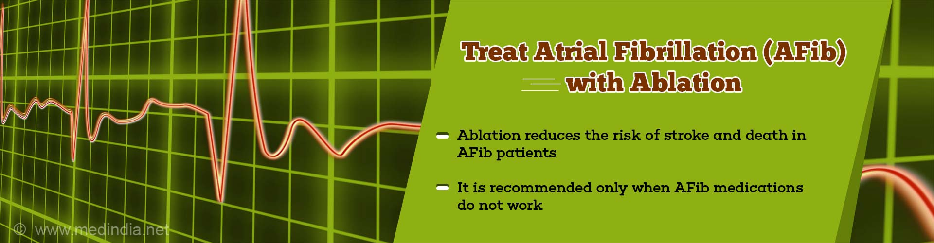Ablation can Help Treat Atrial Fibrillation Better