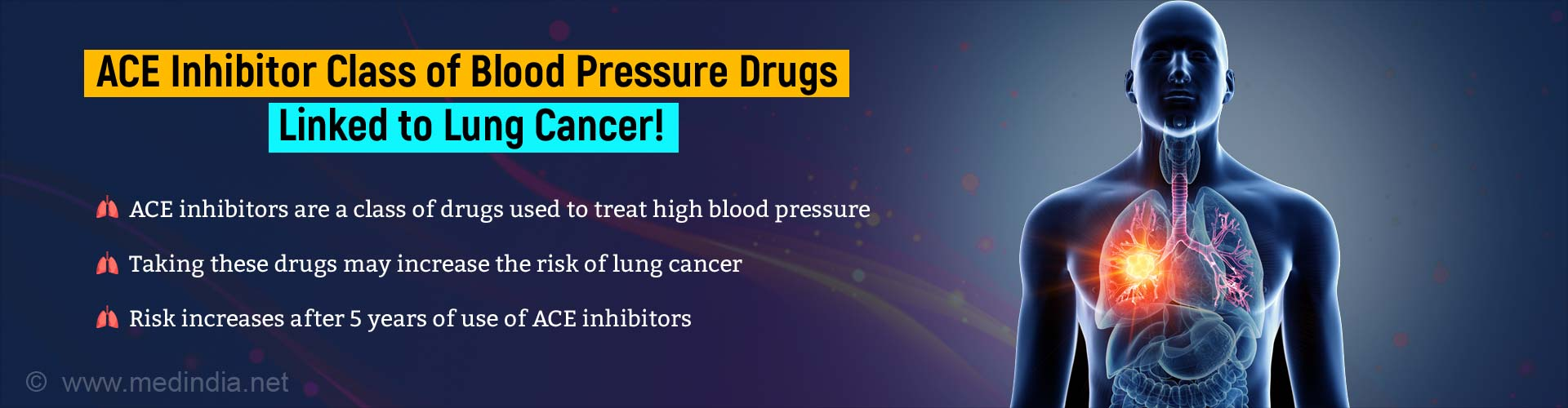 Common Blood Pressure Tablets May Increase Risk of Lung Cancer