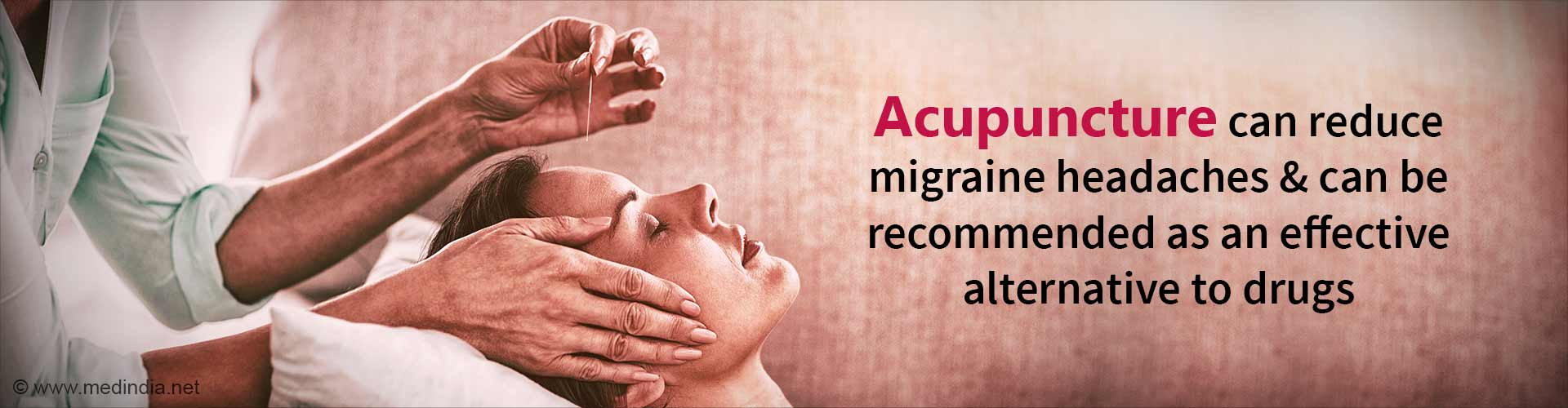 Acupuncture can Treat Migraines