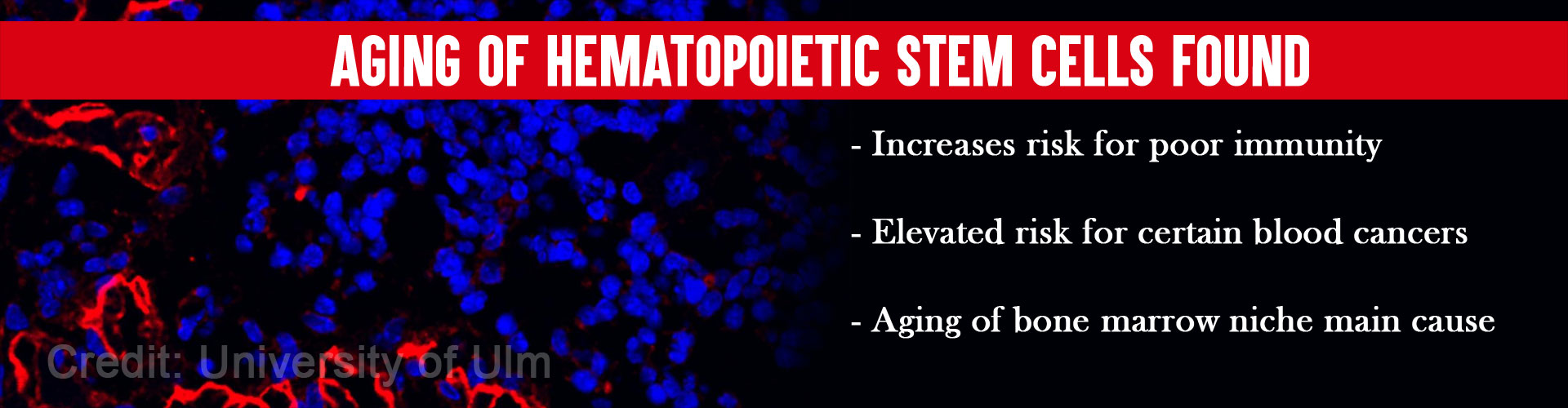 Bone Marrow Aging Linked to Aging of Blood Cell Forming Stem Cells