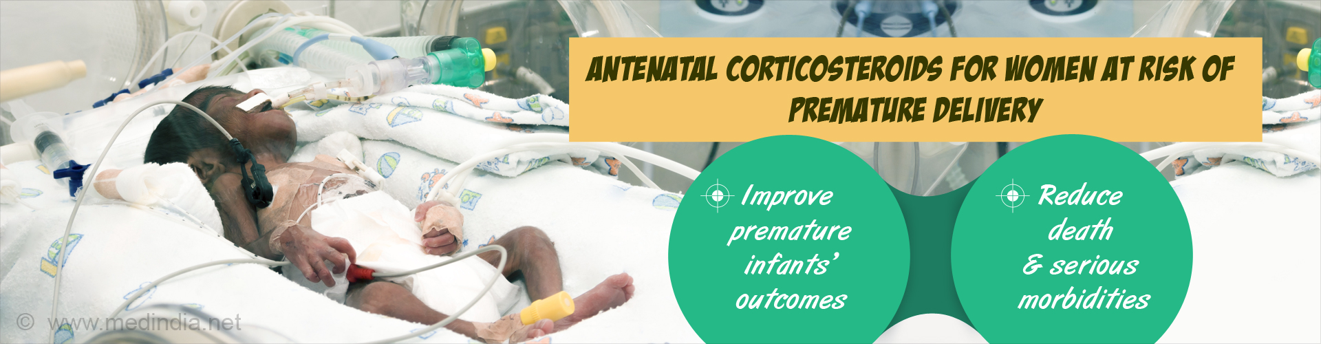Highly Premature Babies Benefit Most from Corticosteroids Before Birth