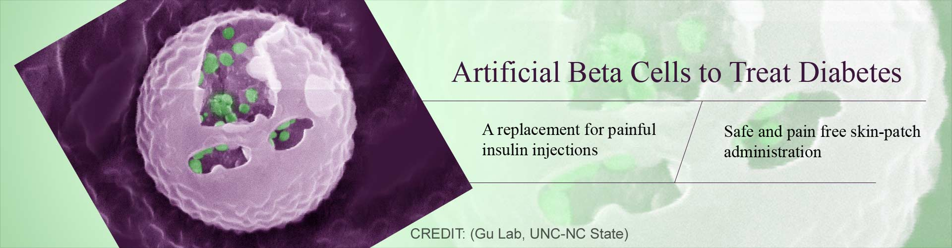 Artificial Beta Cells - the Way Forward for Diabetes Treatment