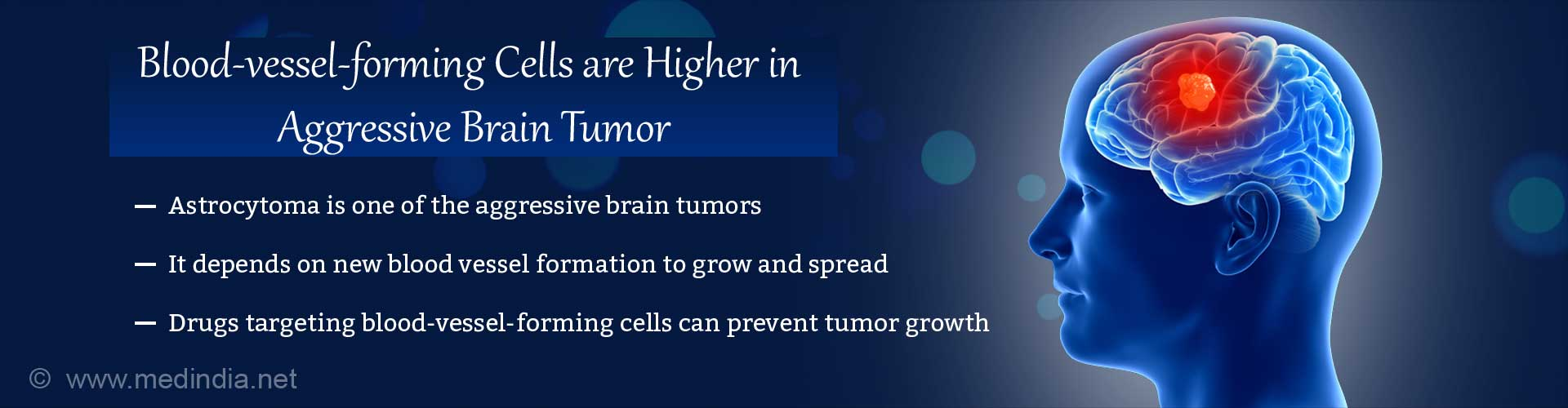 Blood-vessel-forming Cells Increase in Aggressive Brain Tumor