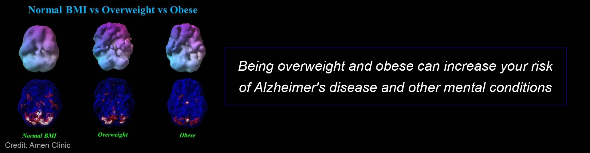 Alzheimer's Disease Risk Increases With Body Weight