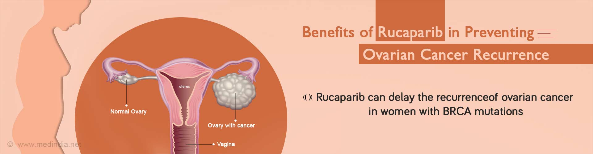 Rucaparib Beneficial as Maintenance Treatment for Recurrent Ovarian Cancer