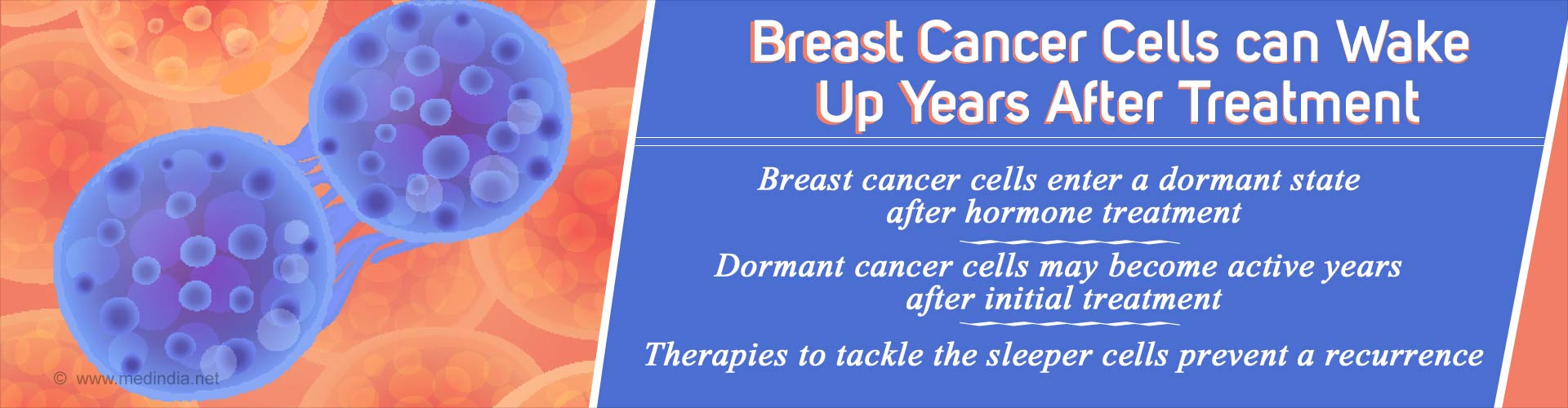 Breast Cancer Cells May Go Into 'Sleeper Mode' After Treatment