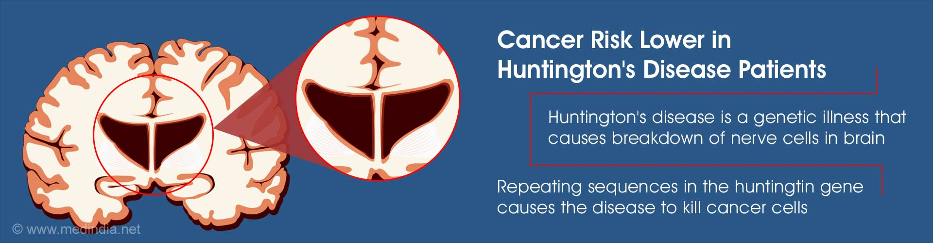 Patients With Huntington''s Disease Less Likely to Get Cancer