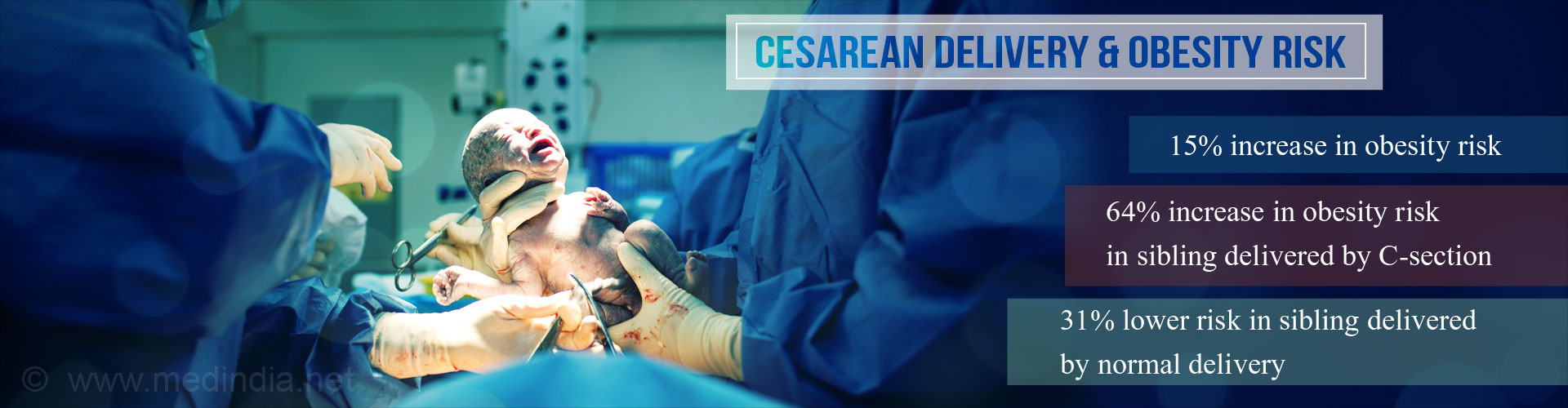 Obesity Risk Increases by 15% in Children Via Caesarean Birth