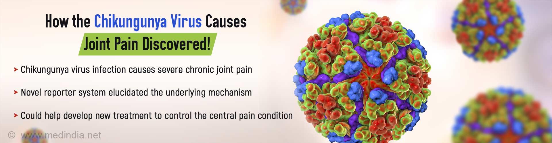 Chikungunya Virus Causes Chronic Joint Pain: Here's How