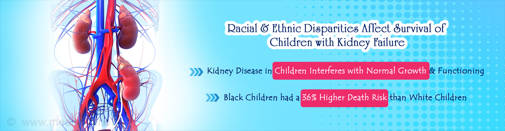 Children's Access to Kidney Transplantation Affected by Racial Disparities