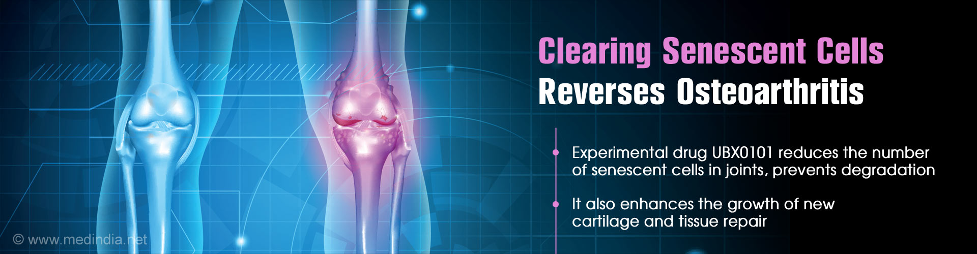 Removing ''Old'' Cells Could Reverse Osteoarthritis
