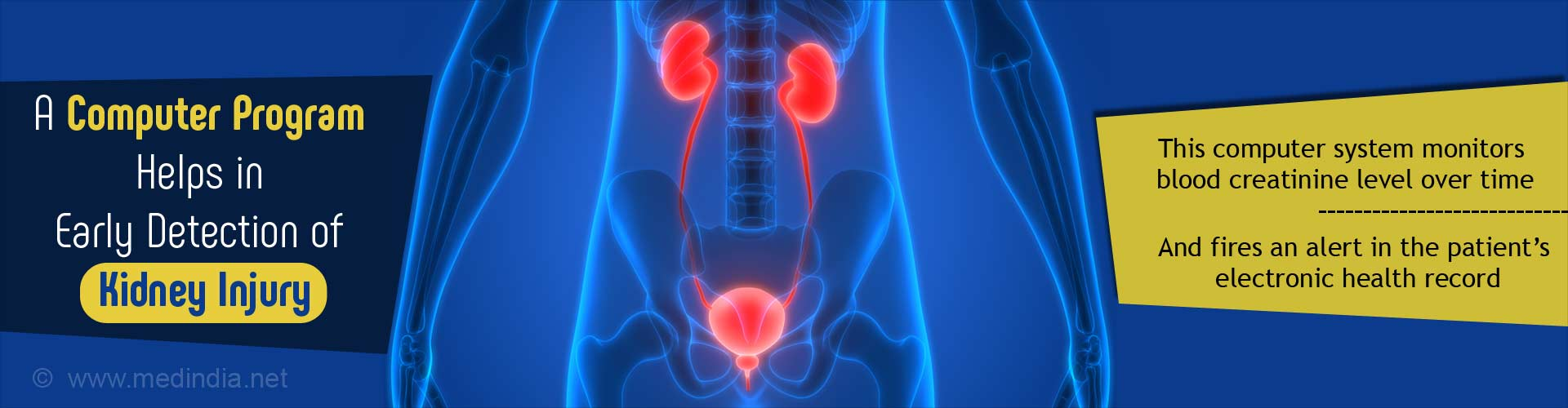 Computer Program Helps in Early Detection of Kidney Injury