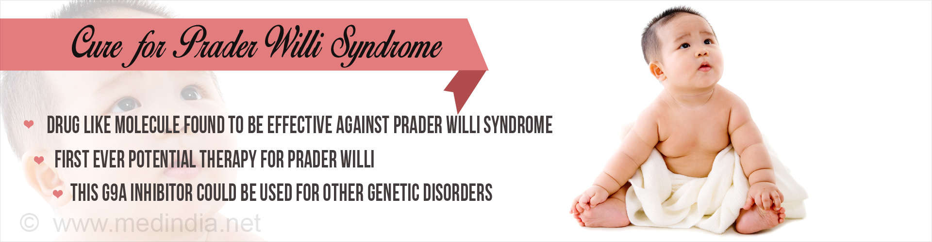 Newly Discovered Drug Molecule Offers Hope of Treatment for Prader-Willi Syndrome