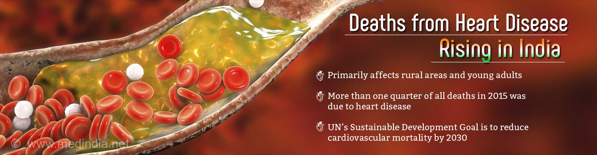 Cardiovascular Disease Deaths Rising in India