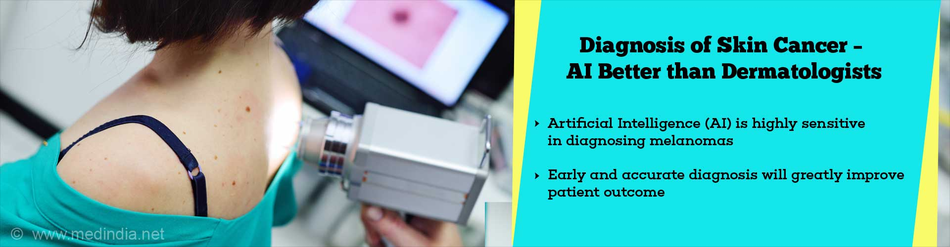 Artificial Intelligence (AI) Performs Better Than Dermatologists in Diagnosing Skin Cancer