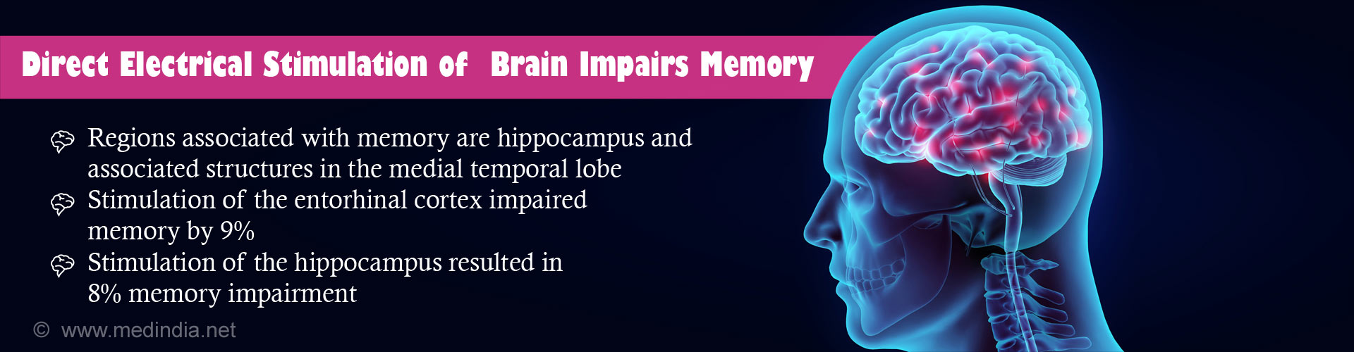 Direct Electrical Stimulation of The Brain does not Enhance Memory