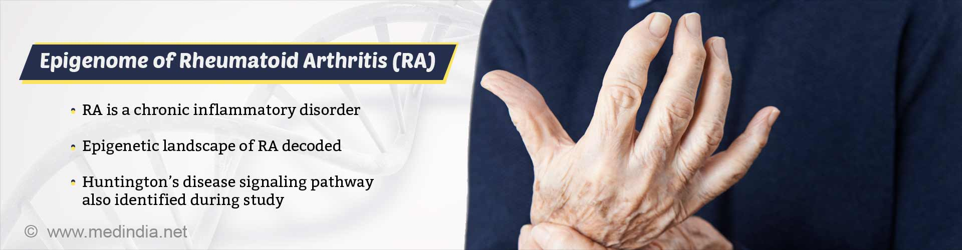 Rheumatoid Arthritis Connection With Huntington's Disease Discovered