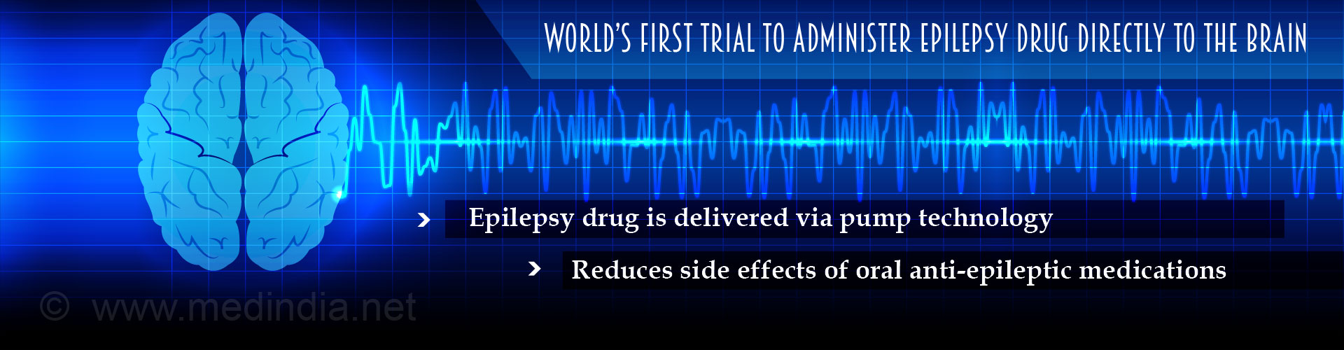 World's First Epilepsy Treatment Delivers Drug Directly to the Brain
