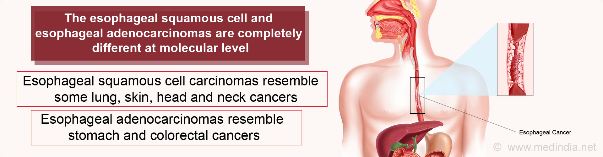 Two New Sub-types of Esophageal Cancer Identified
