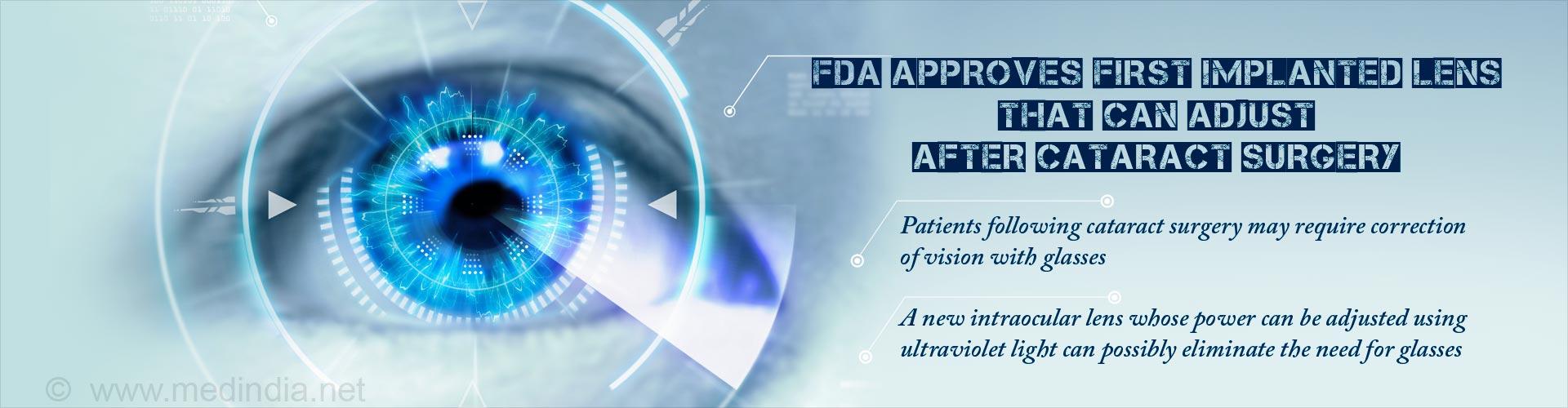 Ultraviolet Light-Sensitive Intraocular Lens can be Adjusted Following Cataract Surgery