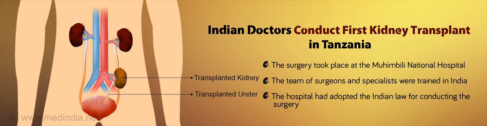 First Kidney Transplant in Tanzania By Indian Doctors