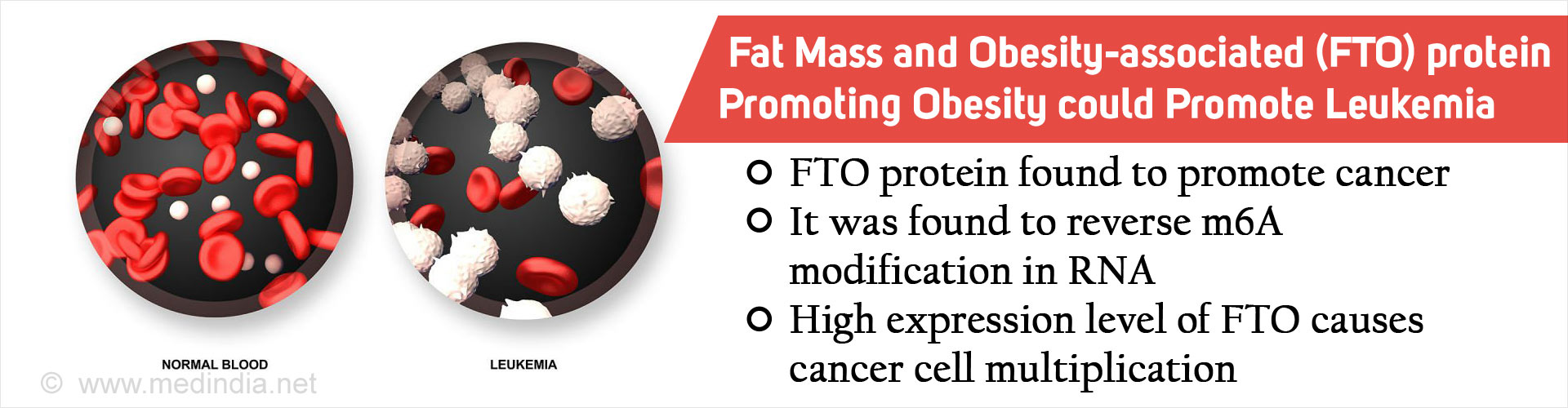 Fat Mass and Obesity-associated (FTO) Protein Linked to Leukemia Risk