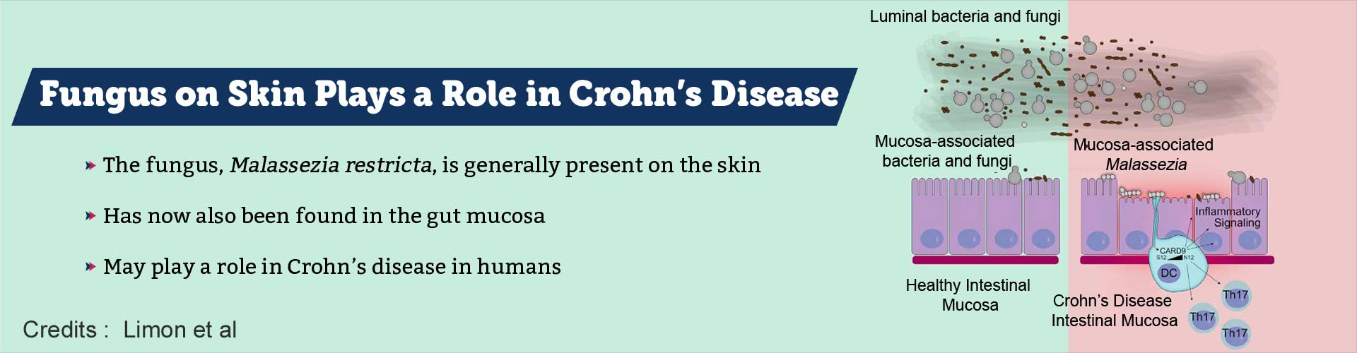 Fungus Usually Present on Skin Could Have a Role in Crohn's Disease