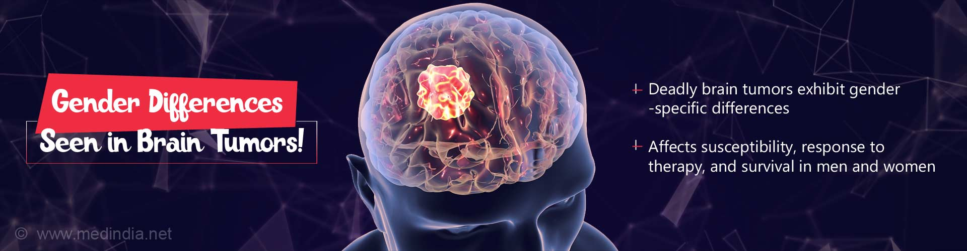 Gender Differences Exist in Brain Tumors