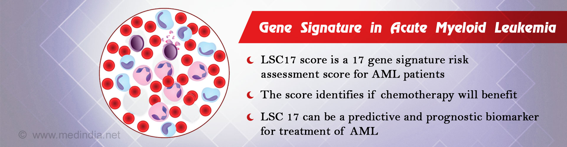Gene Signature Developed for Predictive and Prognostic Biomarker for Acute Myeloid Leukemia Treatment