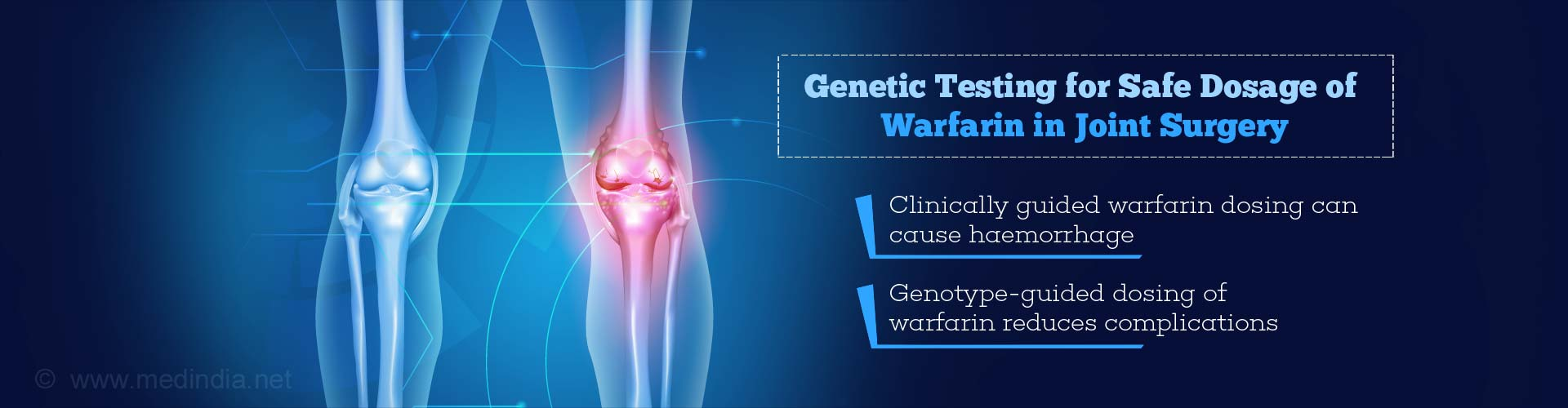 Genetic Testing for Dosage of Warfarin in Joint Surgery