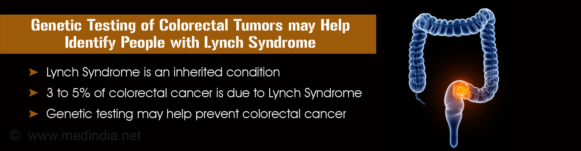 Genetic Testing for Lynch Syndrome Helps Identify Colorectal Cancer Risk
