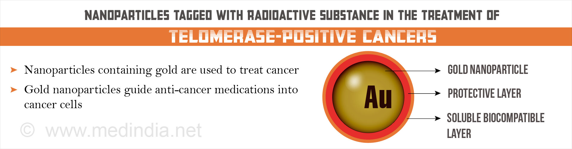 Gold Nanoparticles Tagged With Radioactive Substance in the Treatment of Cancer