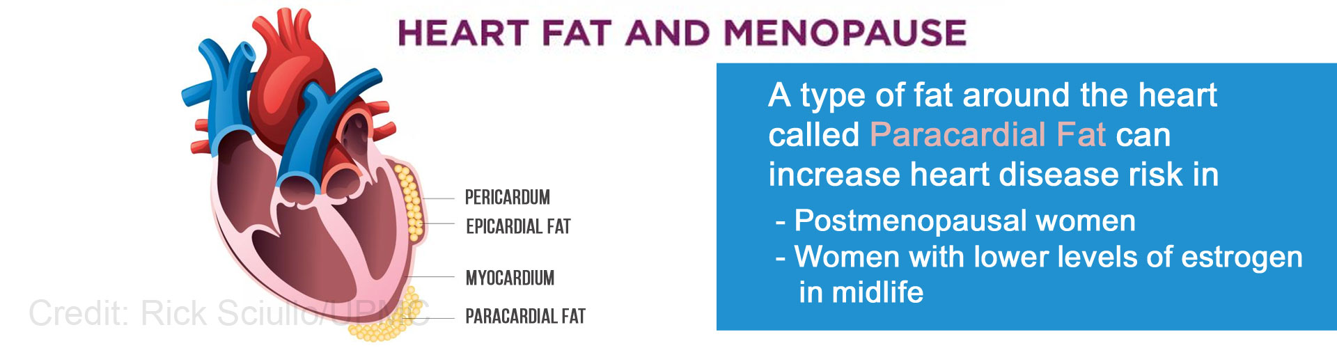 Heart Fat Associated With Higher Risk of Heart Disease in Postmenopausal Women