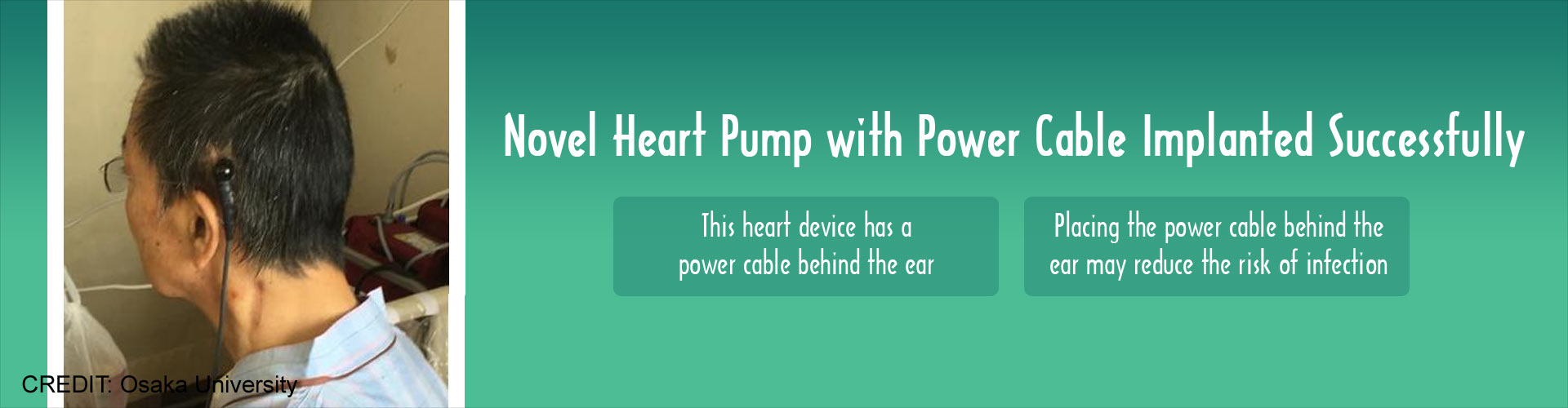 Heart Pump With Power Cable Implanted Successfully