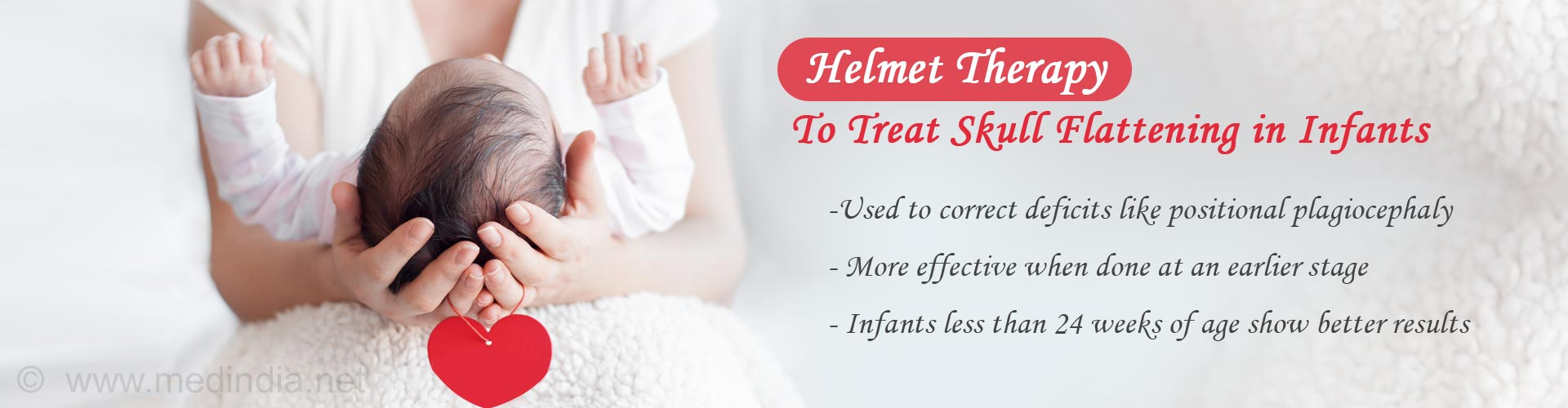 Early Helmet Therapy Shows Better Results For Infants With Skull Flattening