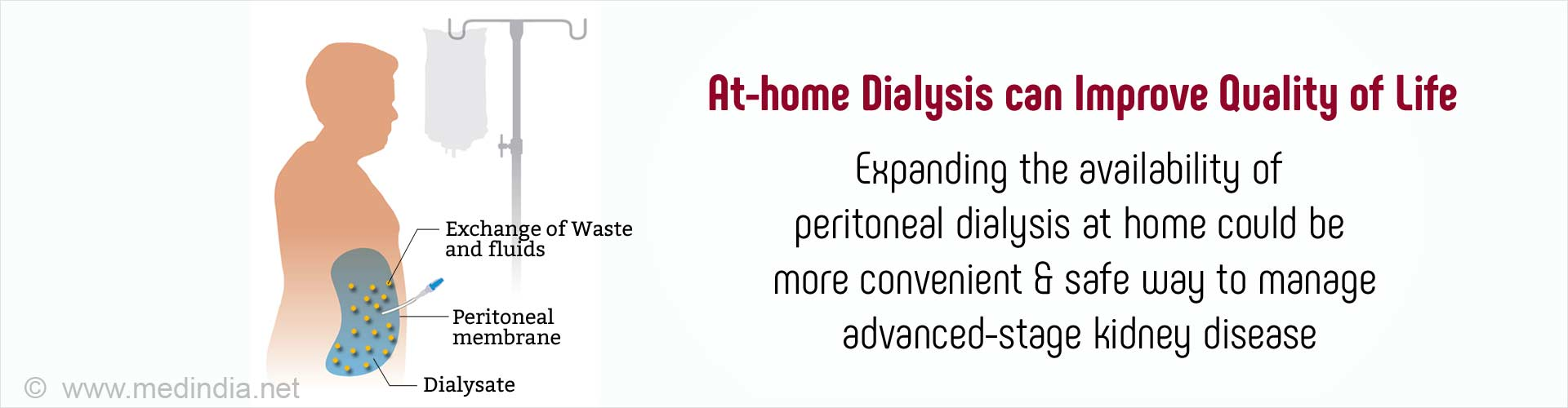 Home Dialysis can Improve Quality of Life for Kidney Disease Patients