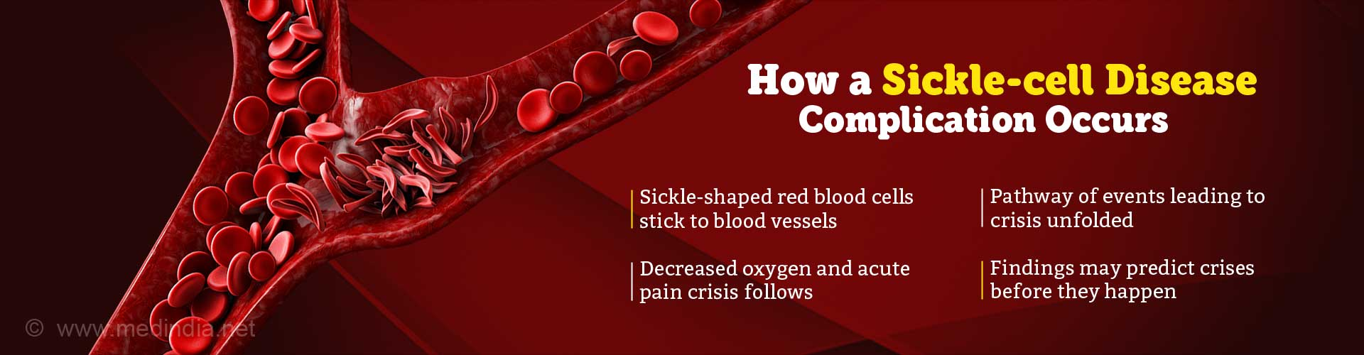 How Does Acute Pain Crisis in Sickle Cell Disease Arise?