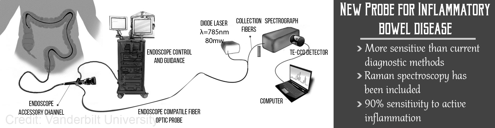 New Probe To Detect Inflammatory Bowel Disease During Routine Fiber Optic Diagram A Colonoscopy
