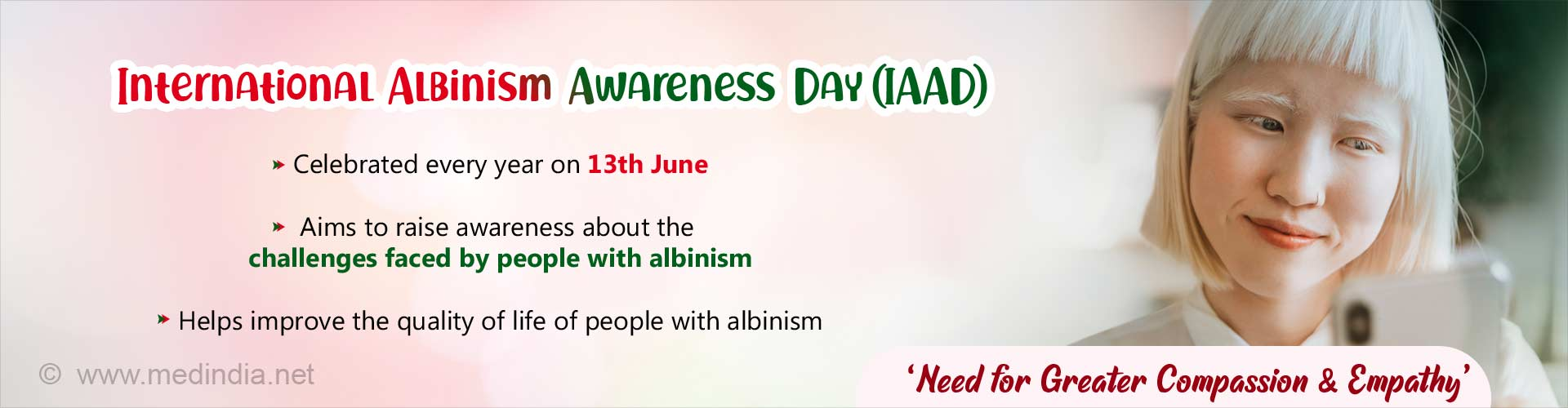 International Albinism Awareness Day: 'Still Standing Strong'