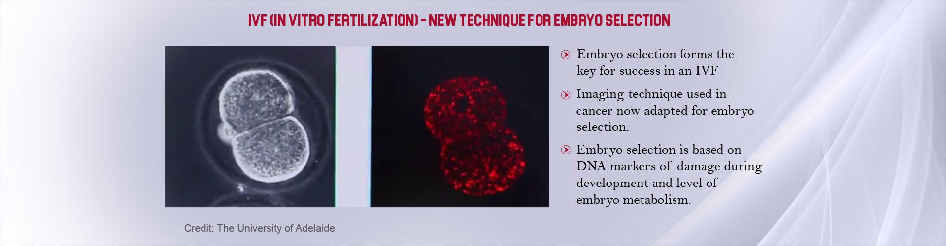 Boost Chances for IVF Success With New Technique for Embryo Selection