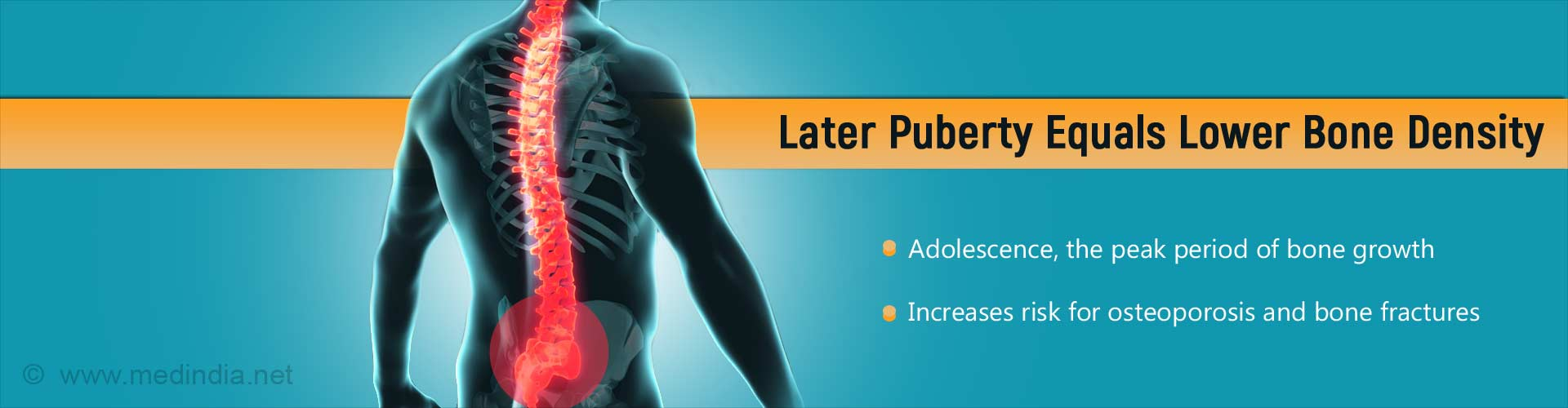 Delayed Puberty Reduces Bone Density And Increases Risk Of Osteoporosis