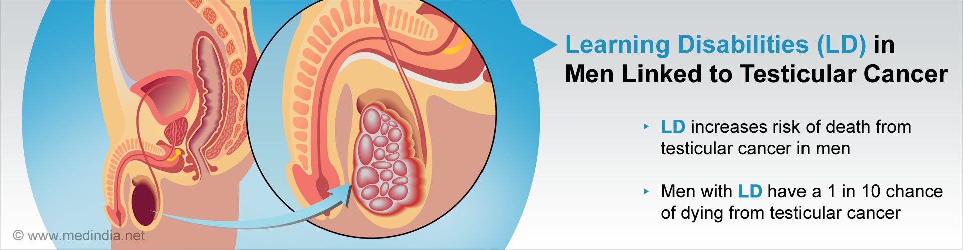 Men With Learning Disabilities More Likely To Develop Testicular Cancer