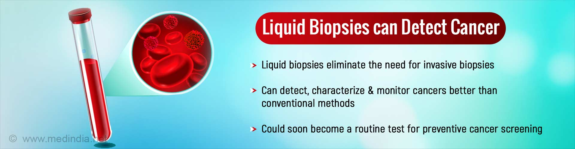 Liquid Biopsies Enable Better Outcomes for Cancers