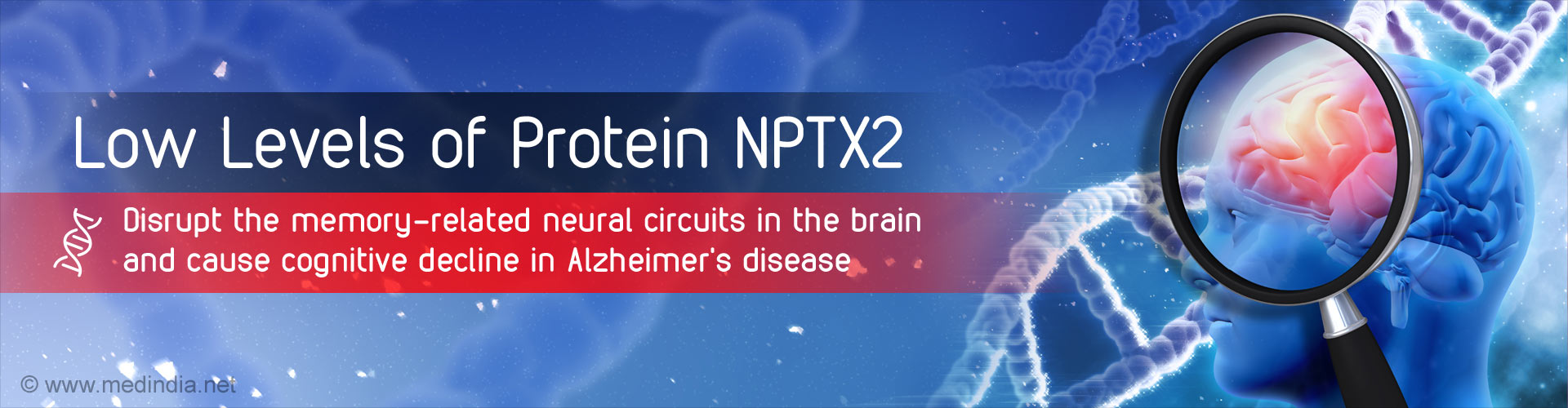 ''Memory Proteins'' Cause Dementia in Alzheimer''s Disease