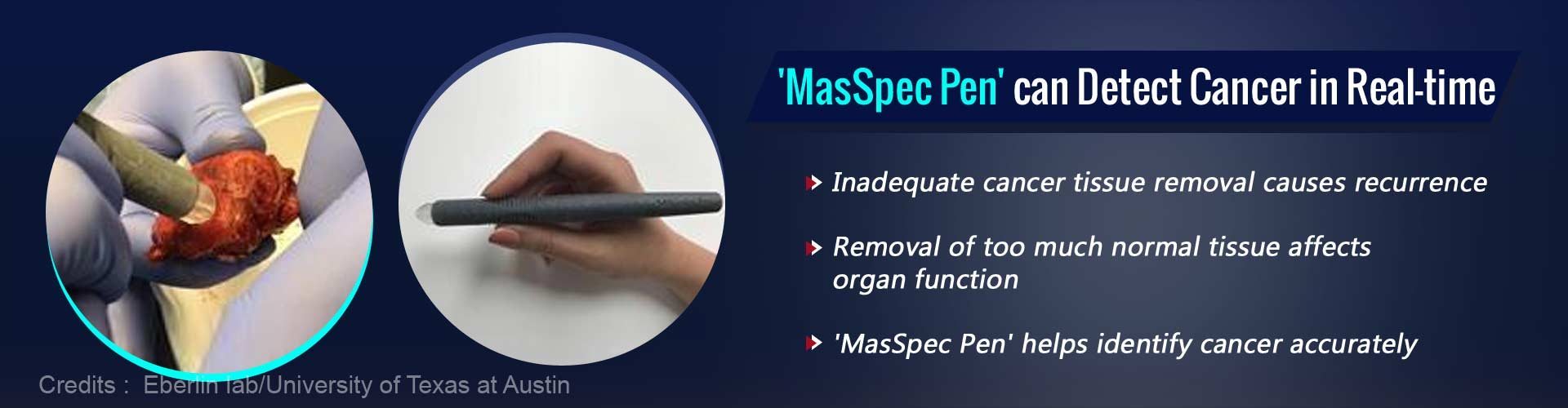 MasSpec Pen can Detect Cancer During Surgery Accurately