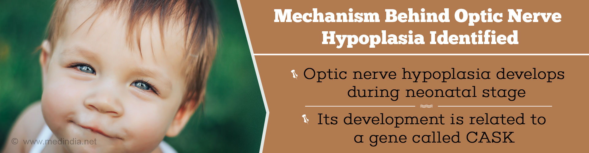 Mechanism Behind Optic Nerve Hypoplasia Revealed