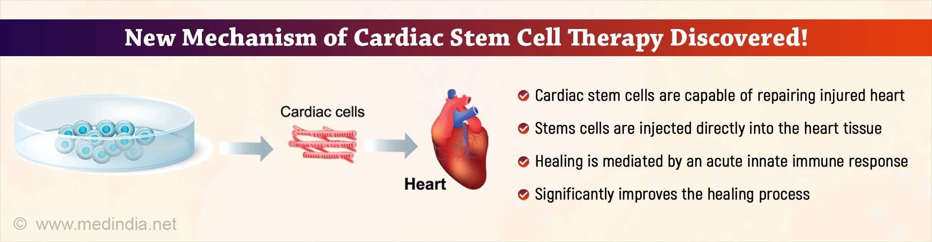 Cardiac Stem Cells can Repair Injured Heart