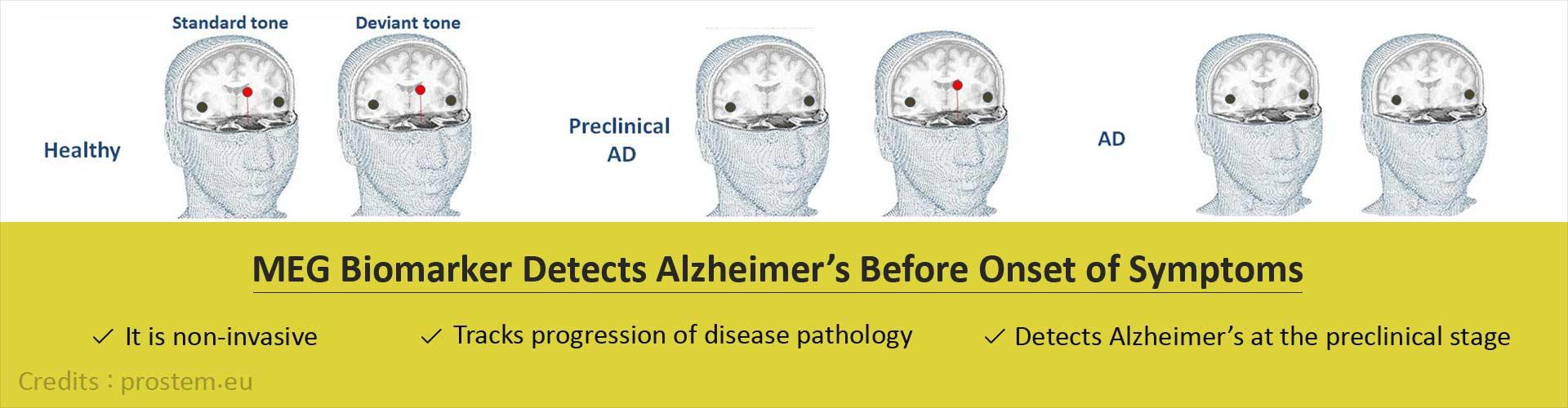 Novel Biomarker Detects Alzheimer's Before Onset of Symptoms